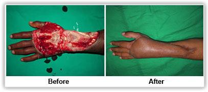hand surgery bangalore hand plastic surgery bangalore